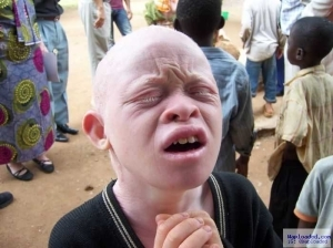 Question Of The Day:- Have You Ever Seen An Hausa Albino Before?